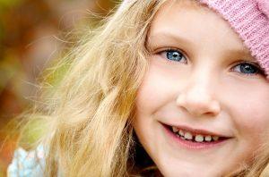 נפילת שיני חלב אצל ילדים